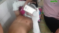 Chùm bóng bay phát nổ, 3 cầu thủ U14 bị bỏng nặng
