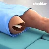 """""""Mục sở thị"""" kỹ thuật cấy ghép chân giả tiên tiến cho người tàn tật!"""
