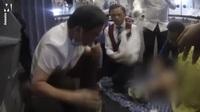 Video bác sĩ Zhang dùng miệng hút nước tiểu cấp cứu bệnh nhân được lan truyền trên mạng
