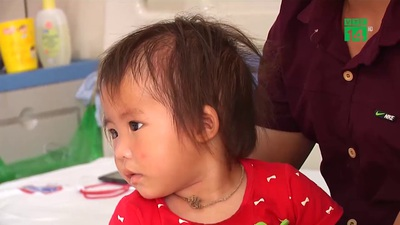 VTC14: Cảnh báo cha mẹ tình trạng mắc ung thư ở trẻ em