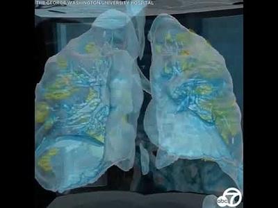 Video hé lộ phổi bị tổn thương nặng của bệnh nhân Covid-19
