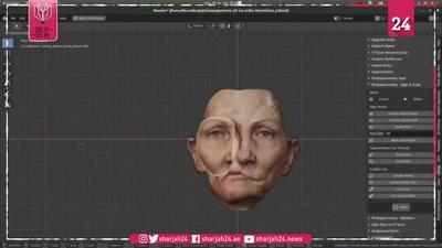 """Hành trình """"kỳ diệu"""" khôi phục một nửa khuôn mặt cho bệnh nhân ung thư bằng công nghệ mới"""