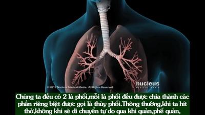 Virus corona gây viêm phổi khiến con người chết vì thiếu oxy như thế nào?