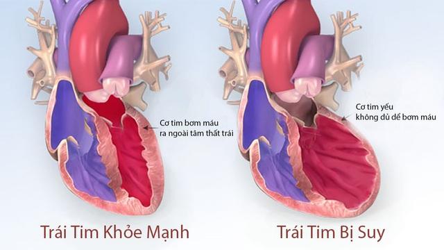 Suy tim là bệnh mạn tính, khó có thể chữa khỏi hoàn toàn và là biến chứng chung của tất cả các bệnh tim mạch.