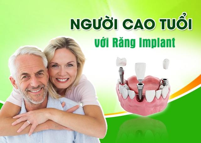 Trồng răng Implant – Sự lựa chọn lý tưởng cho người cao tuổi