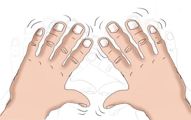 Bệnh run tay khiến người bệnh luôn lóng ngóng, vụng về ngay cả khi làm những việc đơn giản nhất như cầm ly nước, bưng chén cơm.