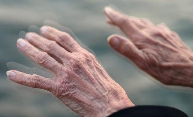 Bệnh run tay chân ở người già do rất nhiều nguyên nhân gây ra.