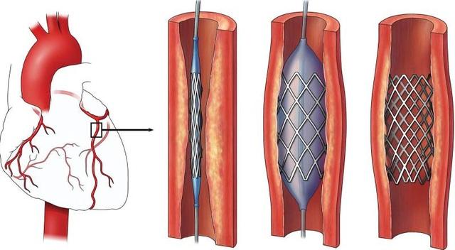 Các bước nong bóng đặt stent mạch vành tại vị trí tắc hẹp
