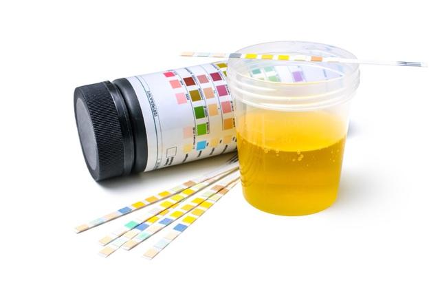 Xét nghiệm nước tiểu 24h hoặc ngẫu nhiên giúp phát hiện sớm biến chứng thận.