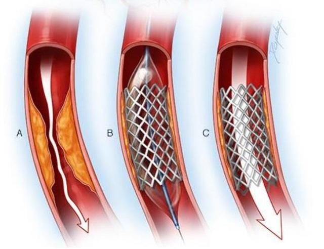 Hình minh họa đặt stent nong mạch.