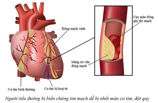 Người tiểu đường bị biến chứng tim mạch dễ cận kề với tử vong - 1