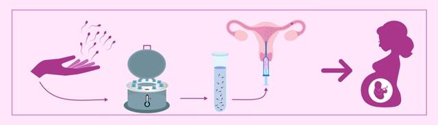Thêm một giải pháp hỗ trợ sức khỏe sinh sản cho các cặp vợ chồng vô sinh hiếm muộn - Ảnh 2.