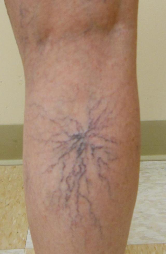 Bệnh ảnh hưởng đến thẩm mỹ, gây đau nhức chân và làm giảm chất lượng sống