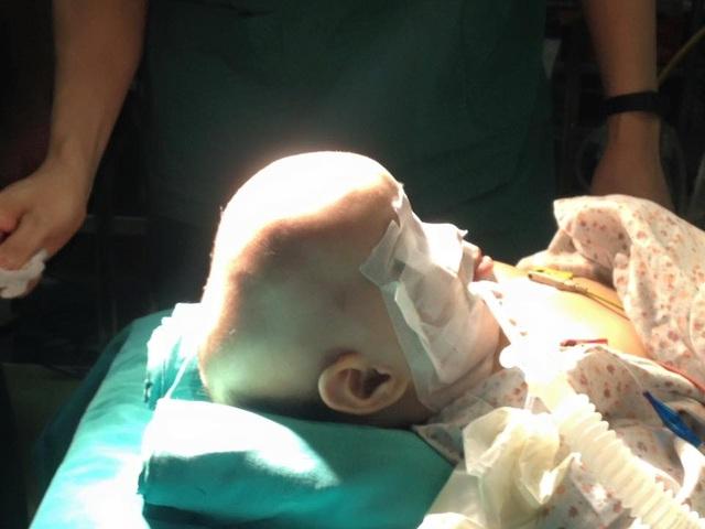 Bé bị dị dạng hộp sọ trước khi phẫu thuật.