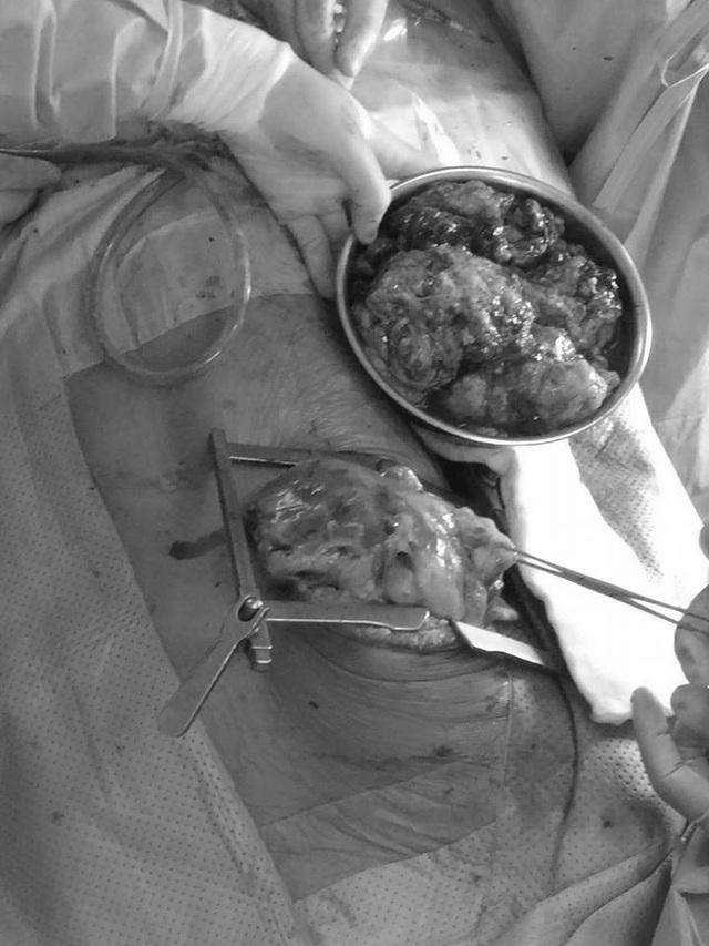 Các bác sĩ tiến hành cắt nhỏ, lấy u khỏi lồng ngực bệnh nhân. Ảnh: BS cung cấp.