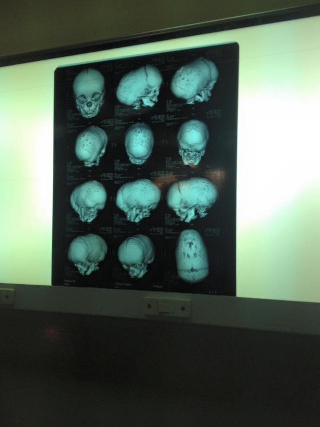 Hình ảnh phim chụp dị tật của bệnh nhân.