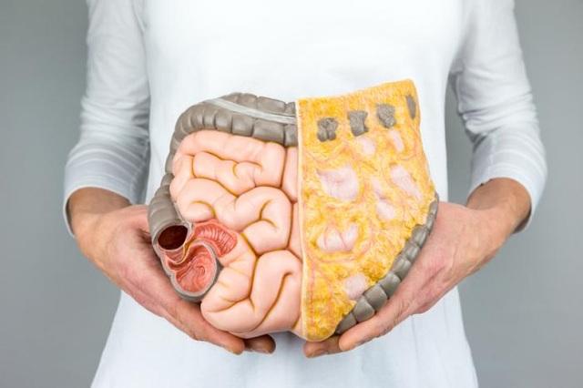 Phụ gia thực phẩm có thể gây ra ung thư đại trực tràng - 1