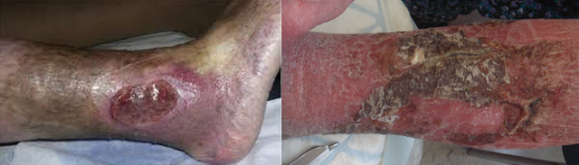 Lâu dài, nếu không được điều trị, bệnh sẽ tiến triển thành chàm, loét chân.