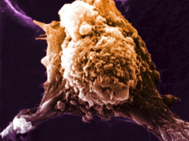 Ảnh chụp hiển vi điện tử của một tế bào ung thư cho thấy chân giả(giả túc) của tế bào. Được tạo ra bởi một loại protein có tên yếu tố dịch chuyển tự tiết (AMF) cho phép chúng di chuyển đến các bộ phận khác của cơ thể. Sự dịch chuyển này là phần không thể thiếu trong toàn bộ quá trình di căn