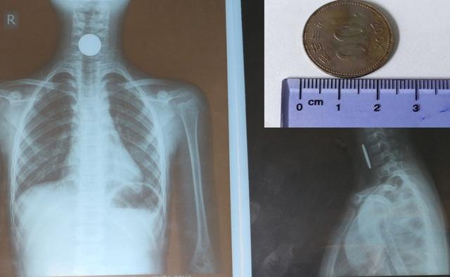 Hình ảnh chụp phim và đồng xu được lấy ra từ thực quản bé N.