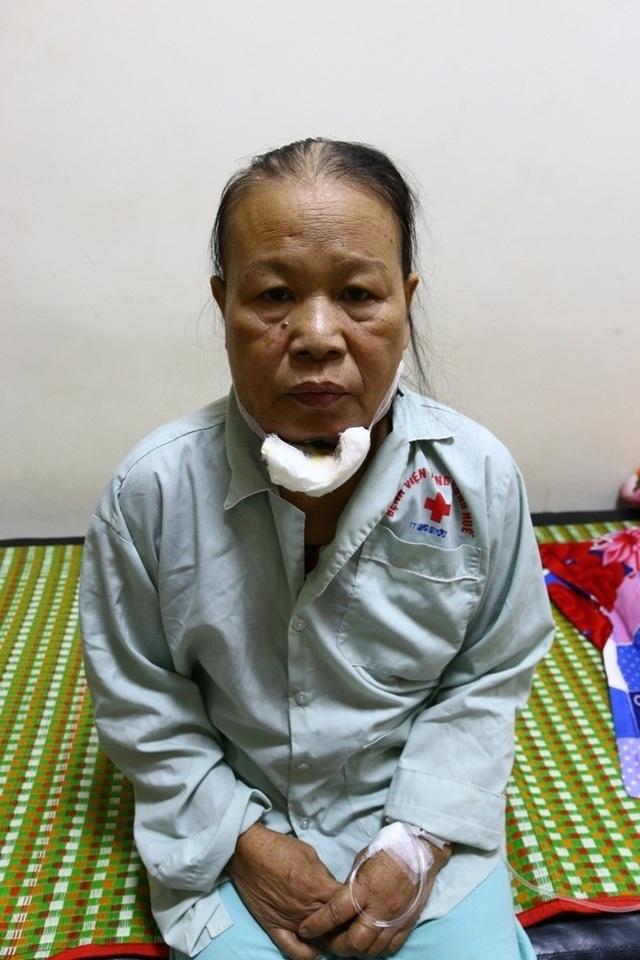 Dì Huỳnh Thị Lợi, 53 tuổi đang nằm tại phòng 308, Trung tâm Ung bướu, bệnh viện Trung ương Huế