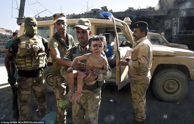Dailymail đưa tin ngày 17/7, lực lượng Iraq đang rà soát ở phía Tây thành phố Mosul để tìm những người còn sống sót sau khi phiến quân Nhà nước Hồi giáo tự xưng IS bị đánh bật khỏi đây. Trong quá trình tìm kiếm, lực lượng cứu trợ đã tìm được những đứa trẻ, trong đó một bé phải ăn những miếng thịt thối rữa để sống sót qua ngày. (Ảnh: Shutterstock)