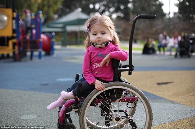 Cô bé Zoe Lush đến từ bang California, Mỹ, mắc phải hội chứng xương thủy tinh. Zoe đã bị gãy một số xương từ khi còn ở trong bụng mẹ, cô bé bị gãy xương đòn trong khi chào đời, và gãy khoảng 100 xương khác trong vòng một năm đầu đời.
