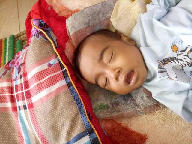 Cháu Khôi bị teo ống mật và bộ phận sinh dục to lên rất đau đớn.
