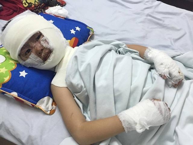 Con trai anh, bé Khánh Thiện bỏng nặng toàn bộ vùng đầu, mặt, 2 tay, 2 chân.