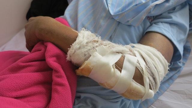 Sau khi bị ngã từ tầng 2 xuống đất anh Quyên bị gãy tay, vỡ 2 xương quai hàm đang được điều trị tại bệnh viện chấn thương chỉnh hình Nghệ An.