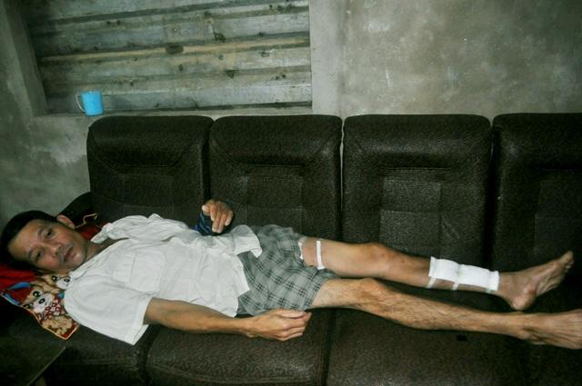 Nếu không có 80 triệu phẫu thuật đôi chân anh có thể tàn phế vĩnh viễn