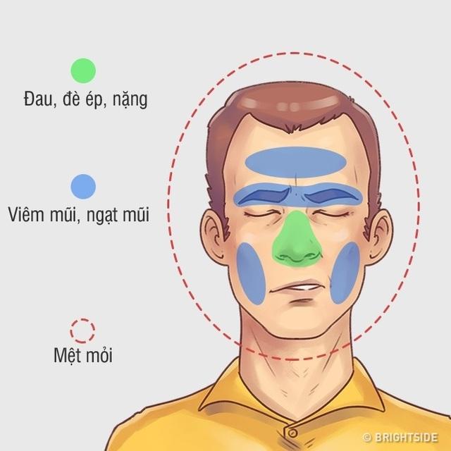 Ứng phó hiệu quả 5 kiểu đau đầu hay gặp - 2