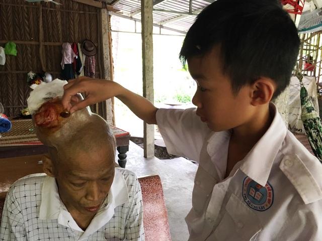 Mỗi ngày khi đi học về Quang thường chăm sóc vết thương cho cha