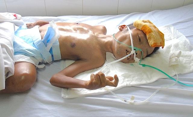 Đã gần 1 tuần trôi qua bị tai biến nhưng anh Cường đến thời điểm này vẫn chưa tỉnh và đang được hồi sức tích cực.