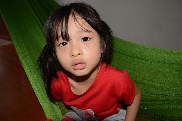 Vẻ mặt và ánh mắt đầy ám ánh của bé Trang…Dường như em đã cảm nhận được sự đau đớn đang hành hạ em gái mình