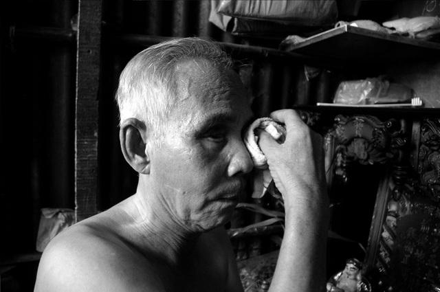 Bị tai biến sau căn bệnh đậu mùa năm 9 tuổi khiến đôi mắt của ông Quang không còn nhìn thấy.