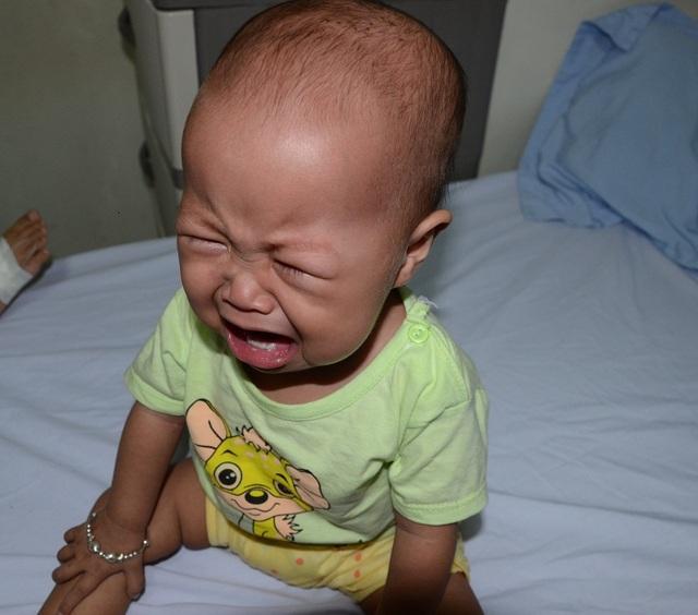 Căn bệnh quái ác làm bé vô cùng đau đớn