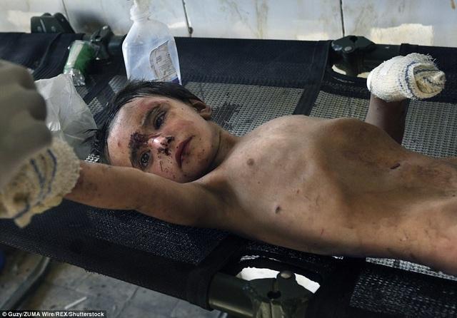 Để cứu được em bé này, lực lượng an ninh Iraq phải tiêu diệt một phiến quân đang phục kích gần đó. Sau khi được cứu trợ, em bé đã được quân đội Iraq chăm sóc y tế khẩn cấp. (Ảnh: Shutterstock)