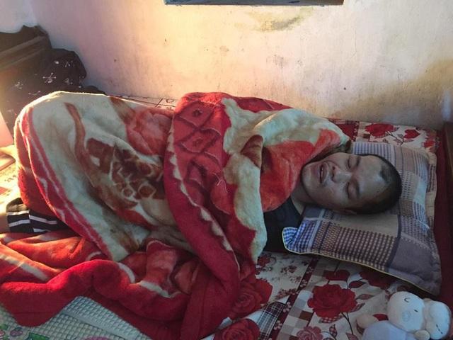 Bố của bé Quỳnh Anh đã được đưa lên bệnh viện nhưng không phẫu thuật được vì khối u đã quá to.