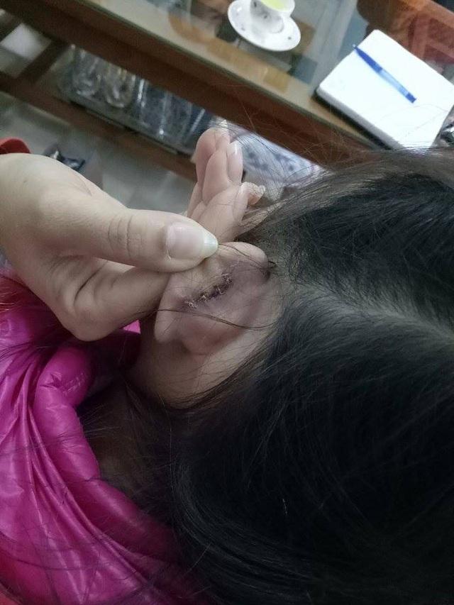 Học sinh Q.A khẳng định cô giáo xách tai khiến em phải đi khâu 4 mũi và trước đó chưa hề có vết thương nào.