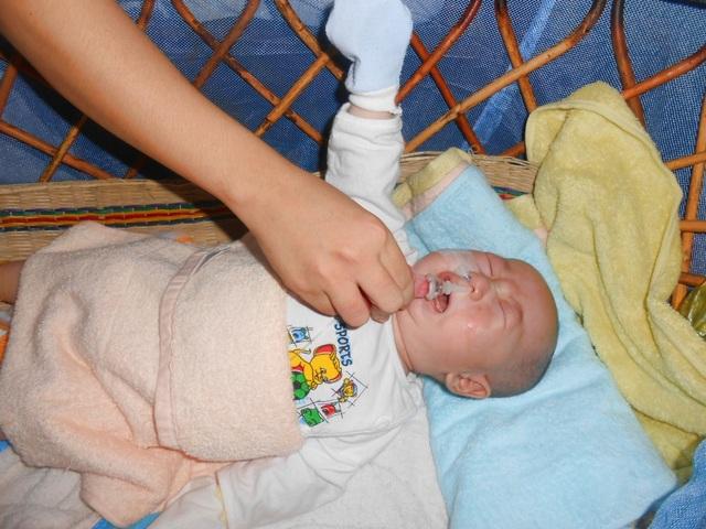 Mỗi lúc cho thức ăn vào bị sặc, dẫn đến khó thở chị Mơ phải dùng ống bóp để thông đường thở cho bé