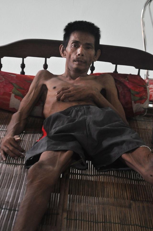 Anh Trần Văn Hơn mắc bệnh teo rút chân tay phải nằm một chỗ