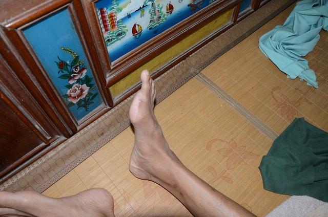 Một ngón chân cũng đã bị tháo bỏ