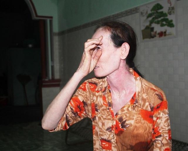 Bà Hoa (vợ ông Khương) chỉ tay vào vết khâu do mảnh gạch, bê tông bắn vào đầu phải khâu 5 mũi