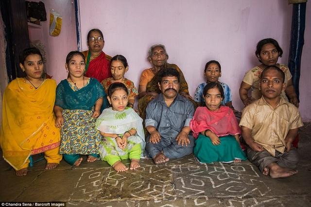 Gia đình này sống ở thành phố Hyderabad, Ấn Độ. Mỗi khi họ cùng nhau xuống phố, cả gia đình luôn thu hút chú ý, bởi 9 trong tổng số 11 thành viên trong nhà mắc phải hội chứng thiếu phát triển sụn, gây ra hiện tượng lùn bất thường, chân tay ngắn.