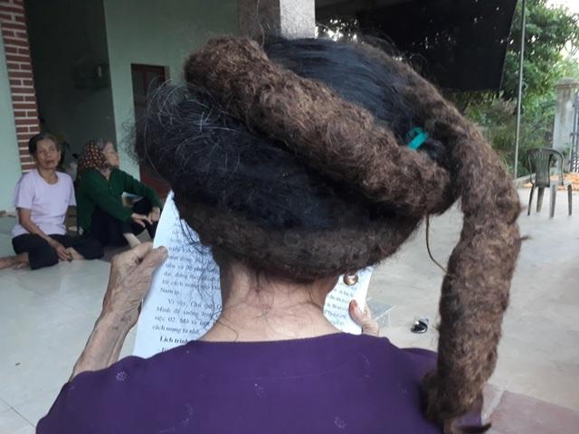 Búi tóc lạ mọc từ phía sau gáy, kết cứng lại dài gần 3m
