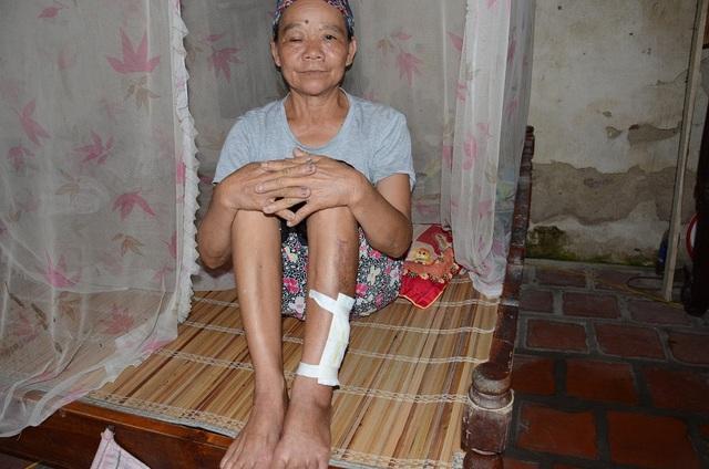 Một lần đi làm đồng bác Dương Thị Lòng bị tai nạn phải nằm viện đến hơn 1 tháng. Để gia đình không bị đứt bữa, bác Dương Văn Chờ tuổi đã cao vẫn phải hàng ngày đi phụ hồ