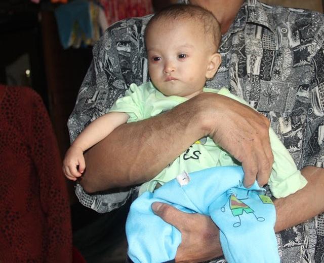 Hơn 16 tháng tuổi nhưng người của bé Thanh Nhàn nhỏ thó, yếu ớt, chỉ nặng 2,8kg.