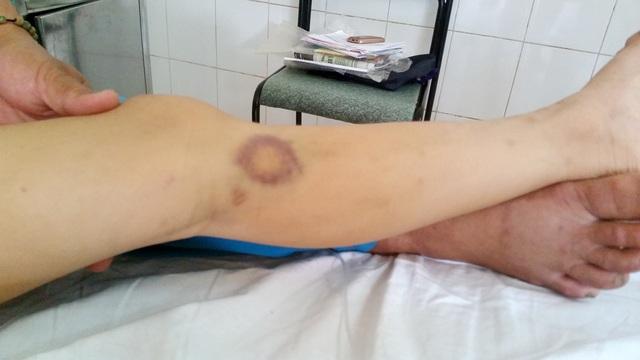 Ở chân cháu xuất hiện những vết bầm tím do thiếu tiểu cầu