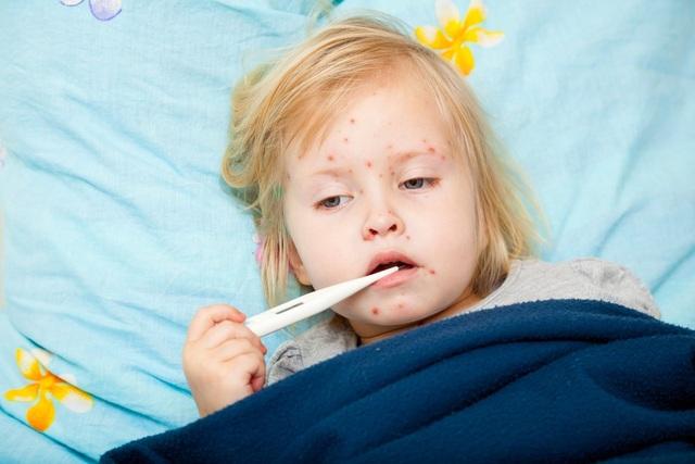 Bệnh sởi khiến trẻ mệt mỏi, sốt cao và dễ dẫn đến biến chứng nguy hiểm